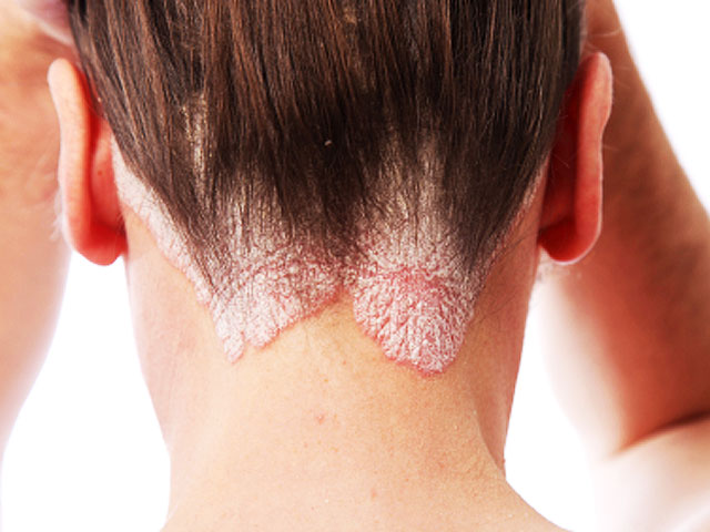 Psoriasis linked to range of serious medical conditions 2