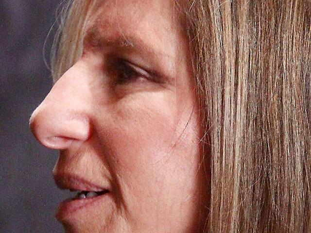 14 Celebrity Noses Whose Schnoz Do You Share Photo 1