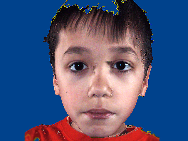 Is it autism? Facial features that show disorder - Photo 1 ...