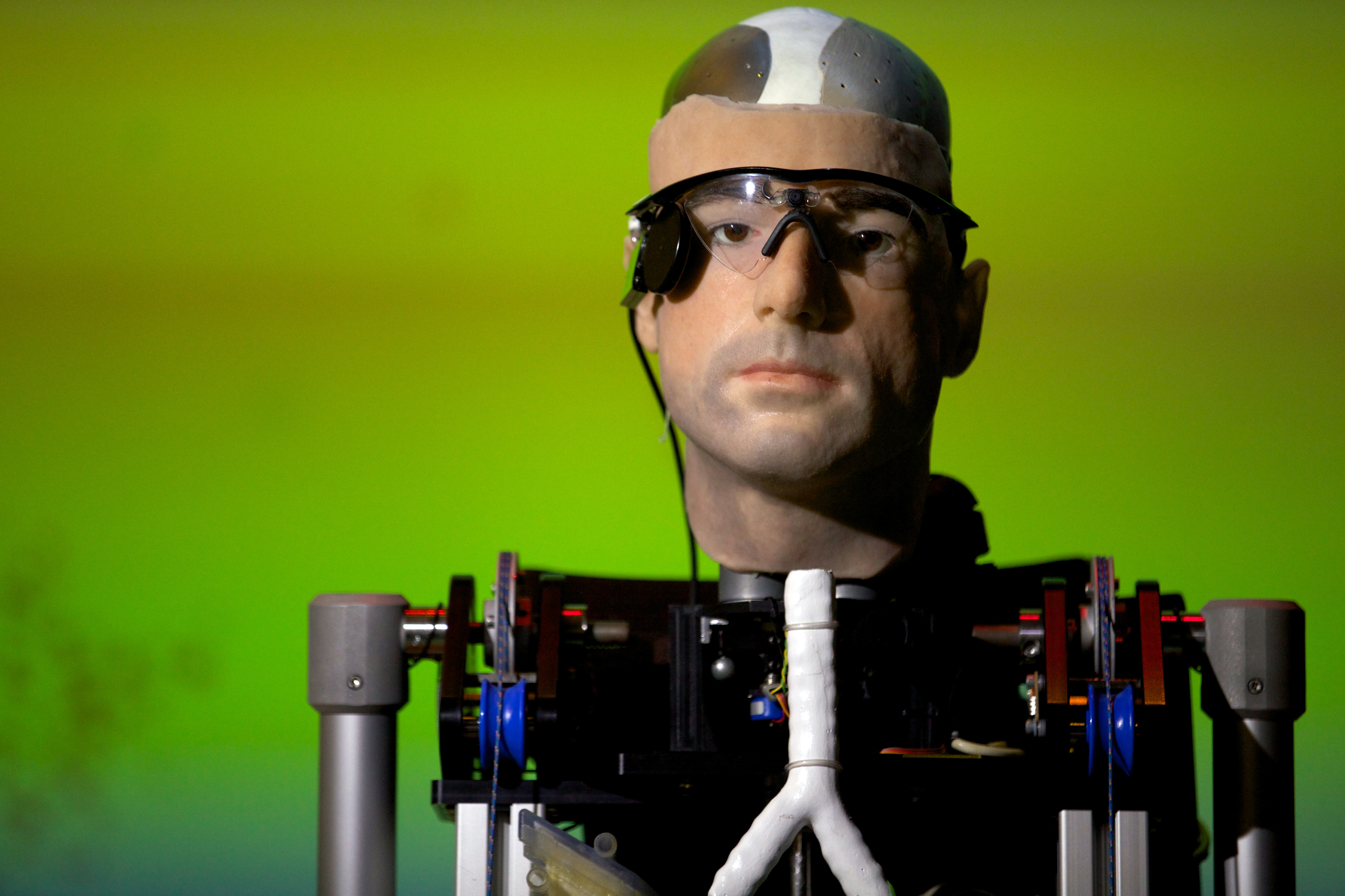 the  1 million bionic man - photo 1 - pictures