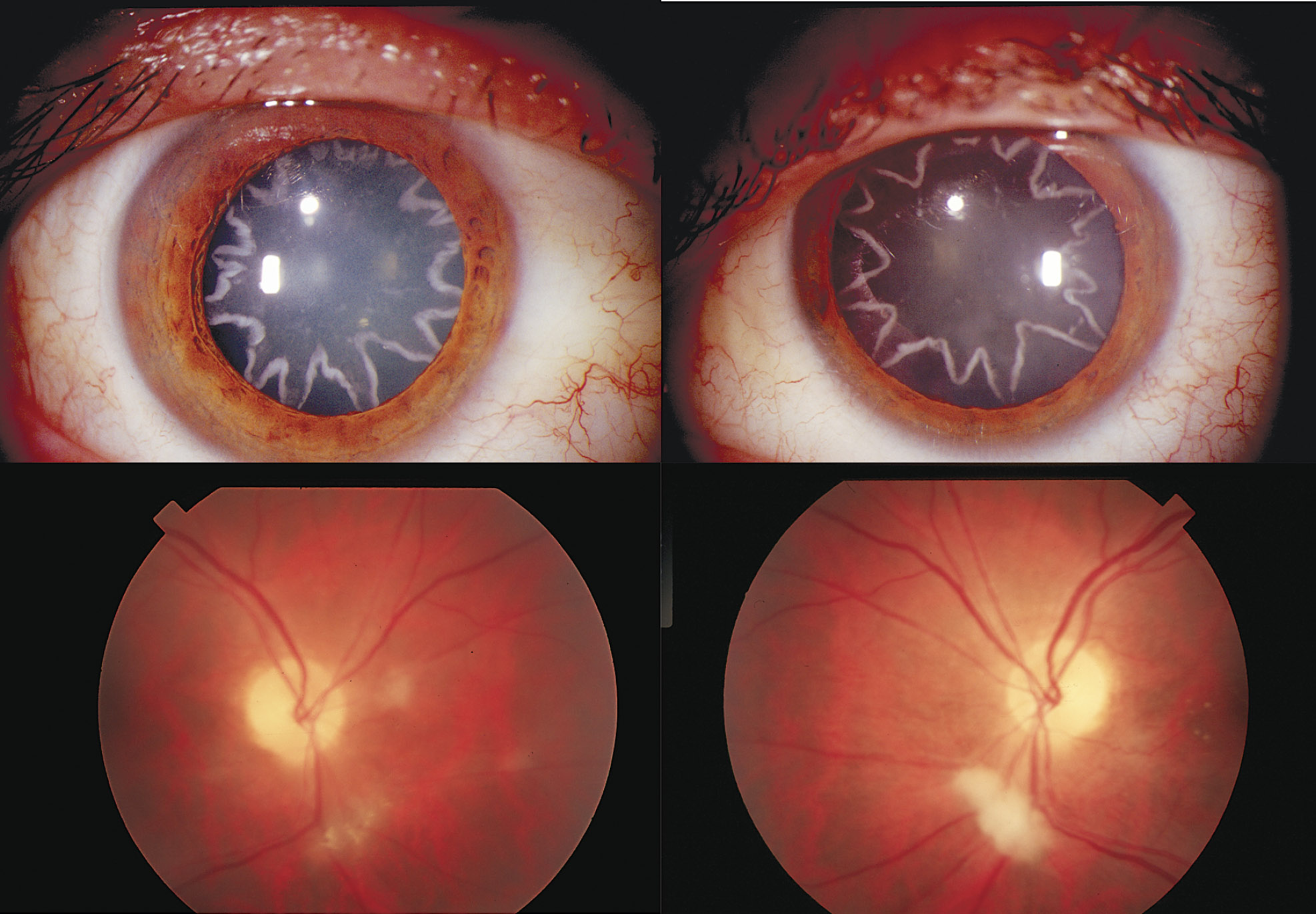 Electrocution Causes Star Shaped Cataracts On Man S Eyes