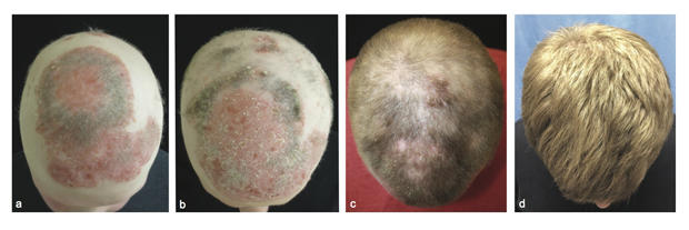 alopecia-hair-drug-jid-2014-0170-r1-figure-2.jpg