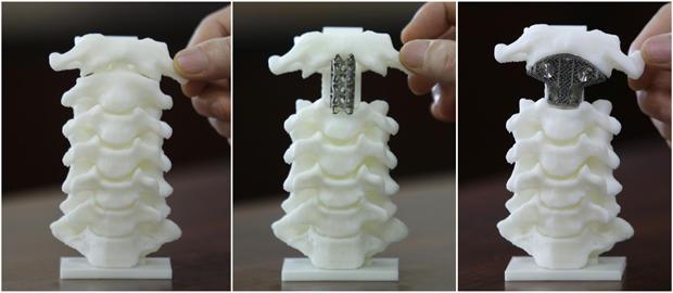 3d-spine-model-620.jpg