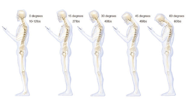 bad posture 620w OMG, youre texting your way to back pain