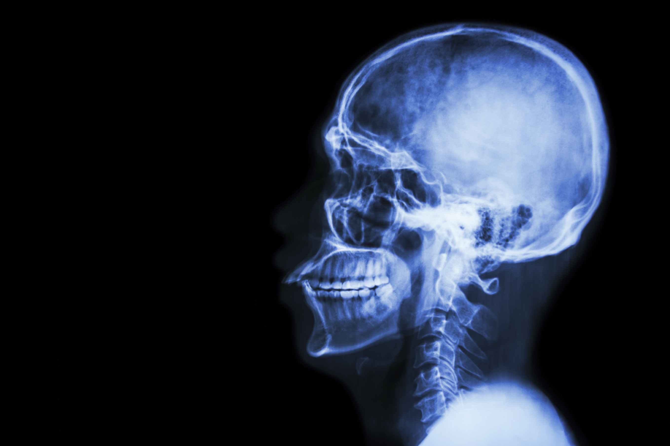 first human head transplant two years away, surgeon claims - cbs news, Muscles