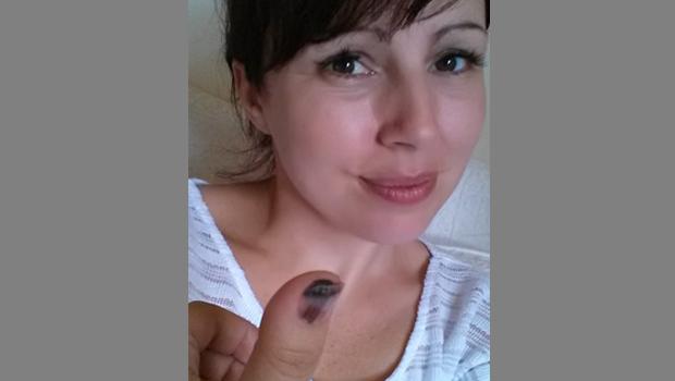 Melanoma can look like nail fungus: Woman's Facebook ... Melanoma Toenail