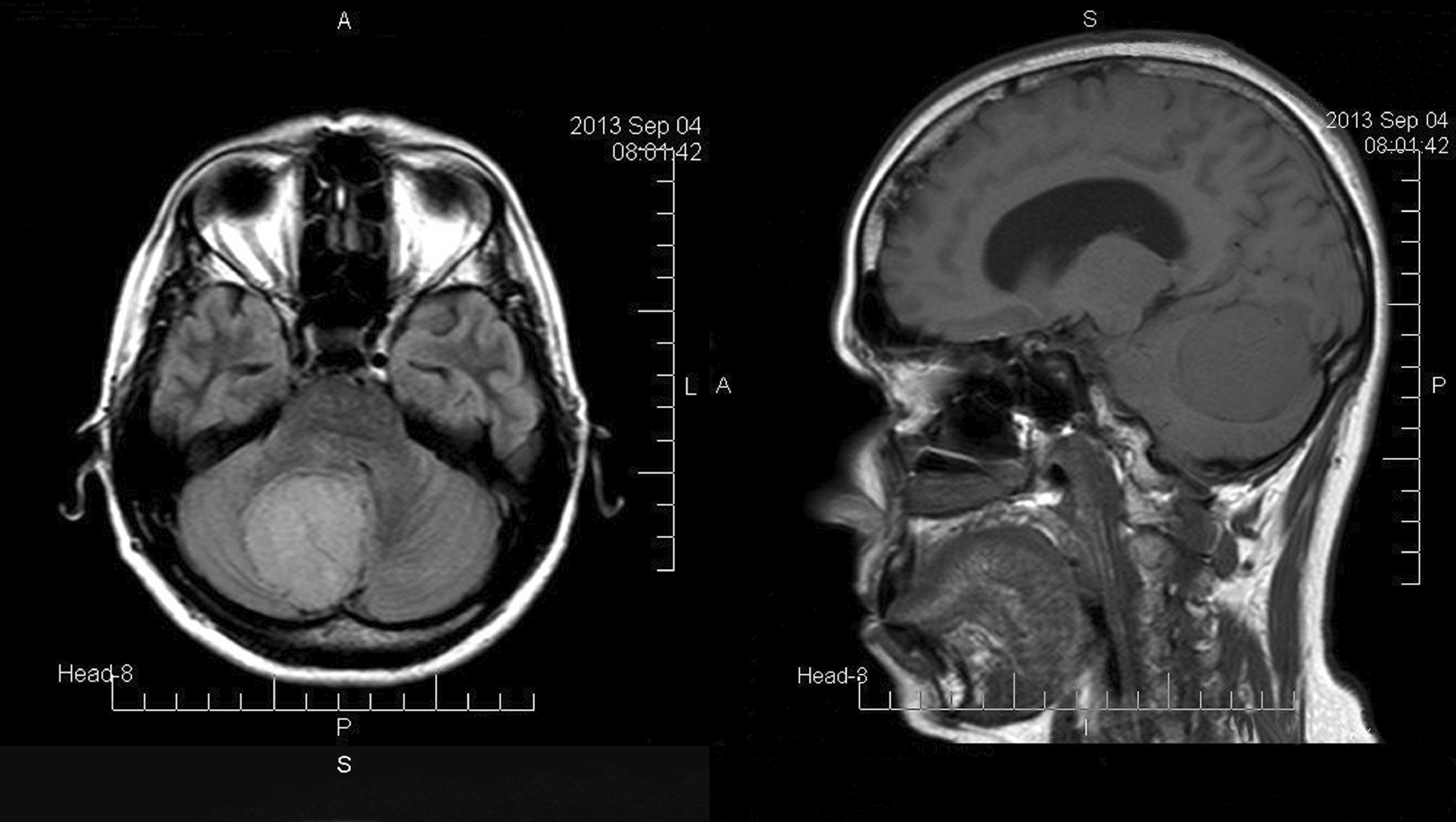 brain scan with tumor - photo #24