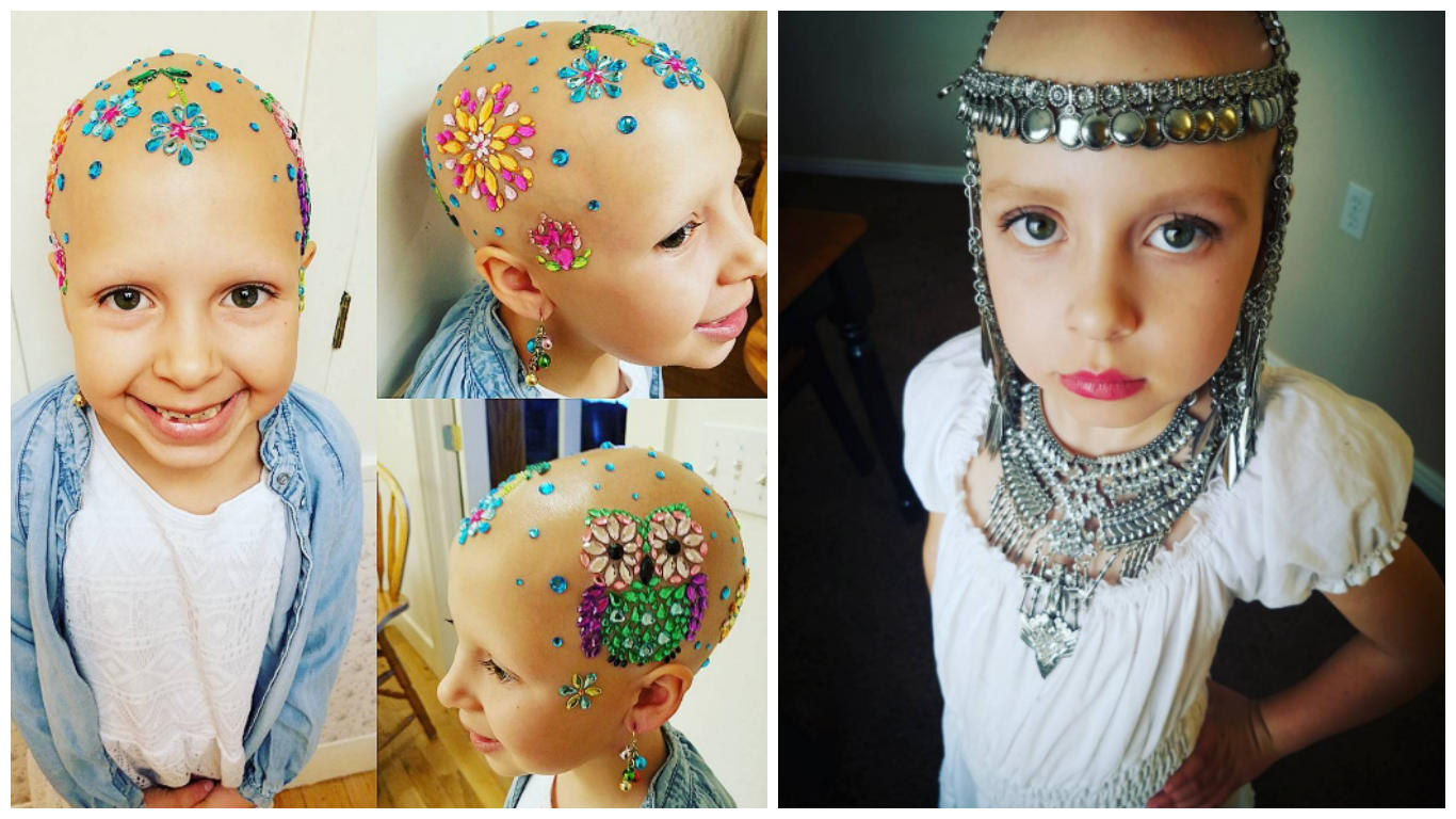 7 year old girl with alopecia makes her baldness beautiful goes viral cbs news. Black Bedroom Furniture Sets. Home Design Ideas