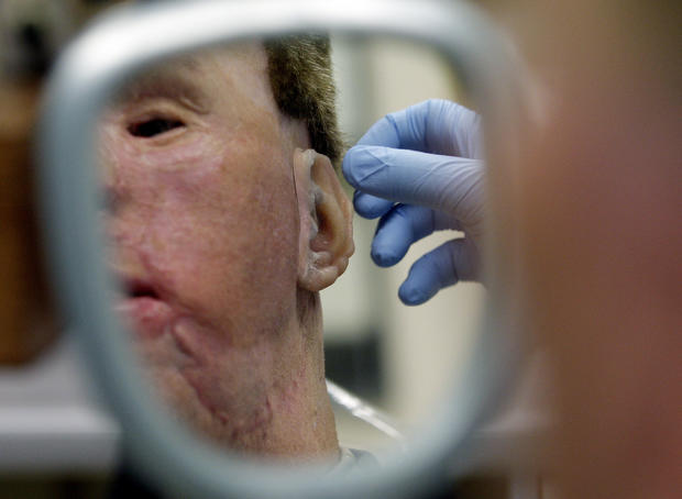 Army Lab Gives Soldiers New Faces
