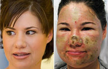 Bethany Storro: Vancouver Acid Attack Victim