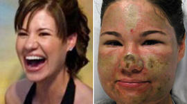 Acid Attack Hoax: Parents Apologizes for Daughter's Fib