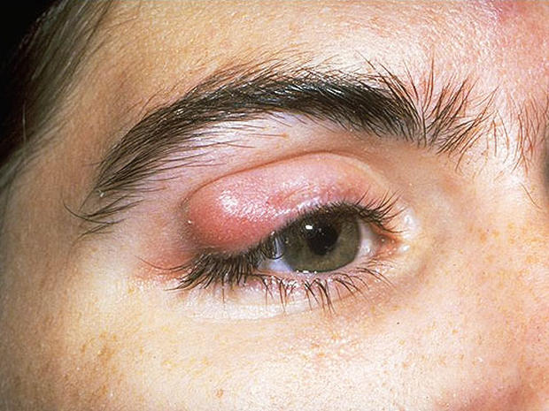 Horner S Syndrome 12 Scary Things Your Eyes Say About