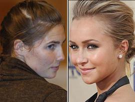 Lifetime Amanda Knox Movie Set to Air Next Year, Hayden Panettiere to Star