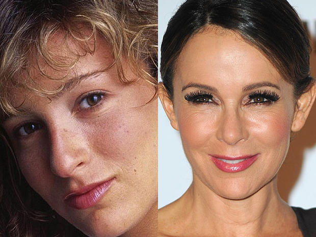 Jennifer Grey Celebrity Plastic Surgery Disasters