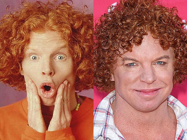 Carrot Top Celebrity Plastic Surgery Disasters