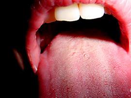open mouth, tongue, sjogren's, stock, 4x3, mouth