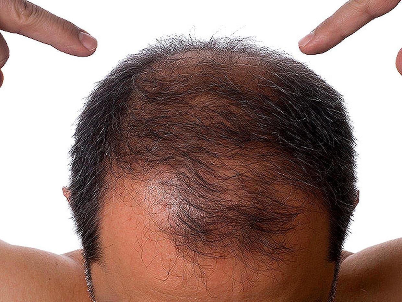Перестали расти волосы на голове у мужчин