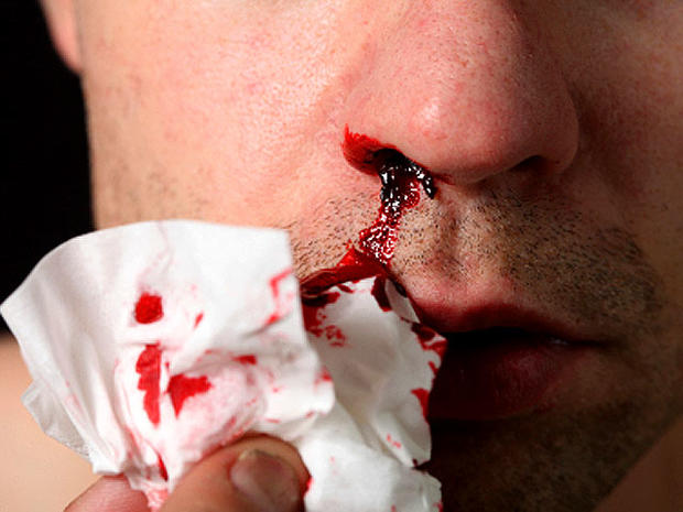 Radiation sickness: 8 terrifying symptoms