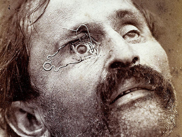 Eye care in the 1800s: 14 shocking photos