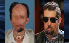 Nation's first face transplant