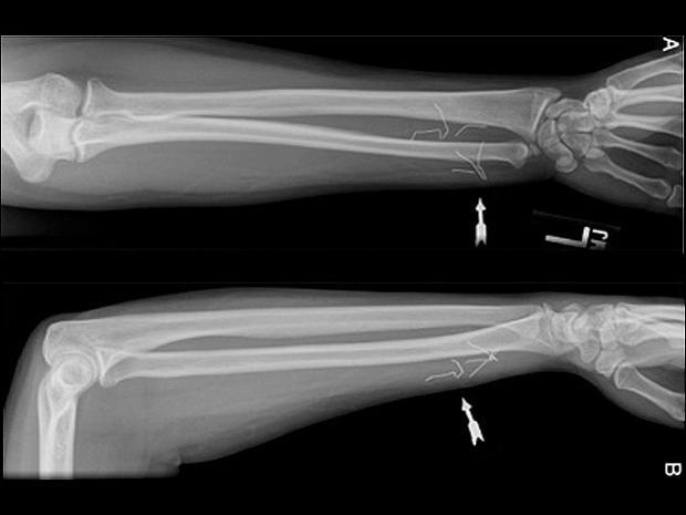 Xray Broken Arm Shocking X-rays: Troub...