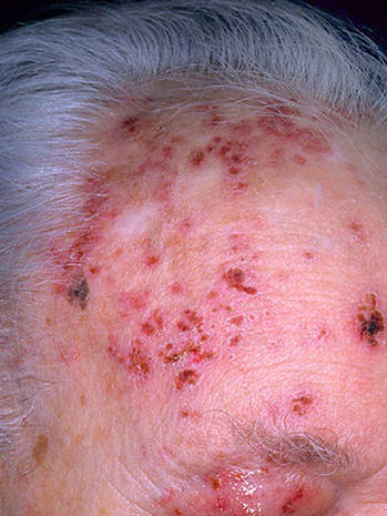 Is it shingles? 7 myths about painful illness (graphic images)