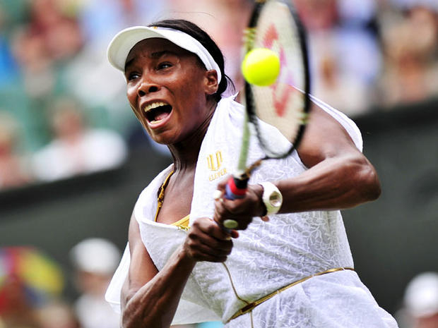 Venus Williams has Sjogren's Syndrome: What is it?
