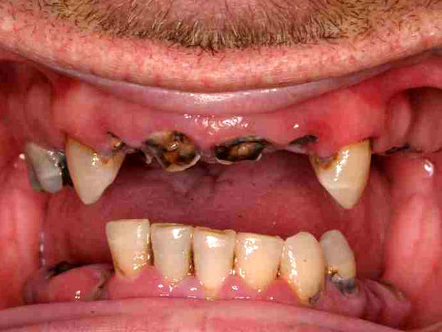 Meth mouth: Inside look at icky problem (15 GRAPHIC IMAGES)