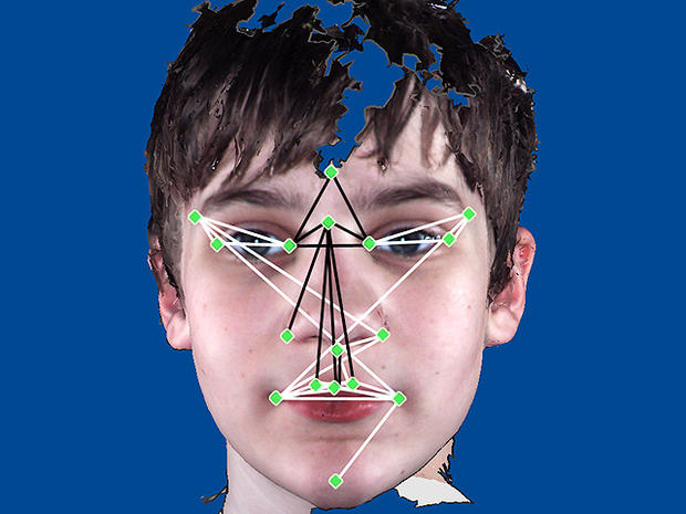 autism, facial features
