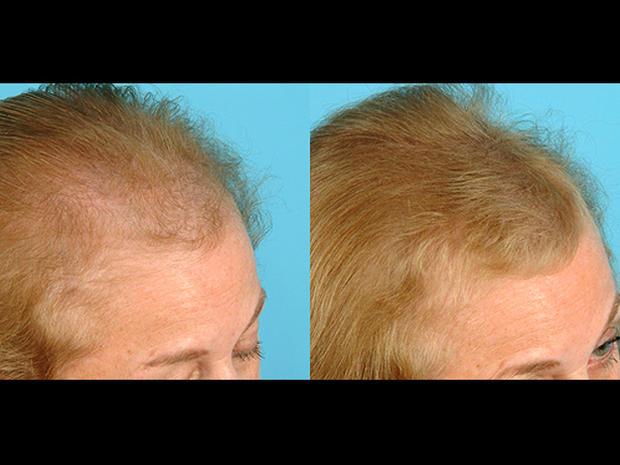 Eek! Hair loss in women: Top 7 risk factors revealed