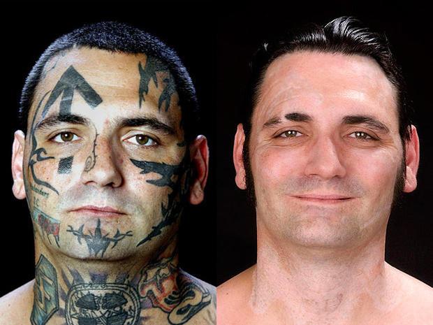Nazi Skinhead Sheds Tattoos 16 Amazing Photos Photo 1