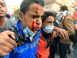 An injured Egyptian protester is helped away during a third consecutive day of clashes with security forces Nov. 21, 2011, at Tahrir Square in Cairo. Fresh clashes erupted between police and protesters demanding the end of army rule as the ruling military council faced its worst crisis since Hosni Mubarak was toppled.