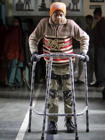 Poliomyelitis: 24 photos of crippling disease