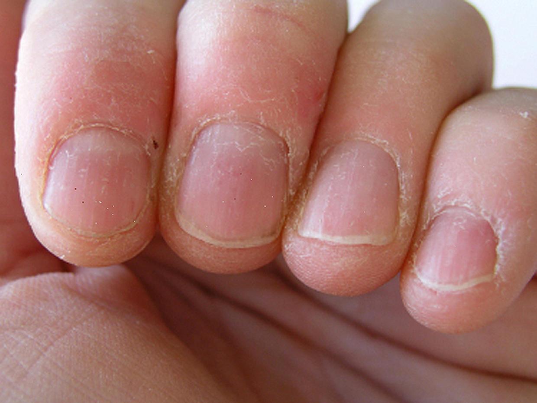 Матрикс на ногте фото