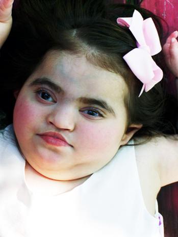 Amelia Rivera, 3, in struggle for kidney transplant over disability