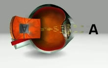 Man gets bionic eye implant