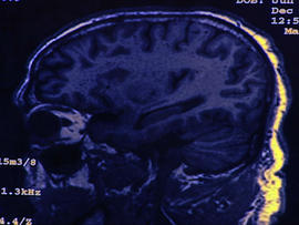 Alzheimer's prevention experiment, whooping cough outbreak