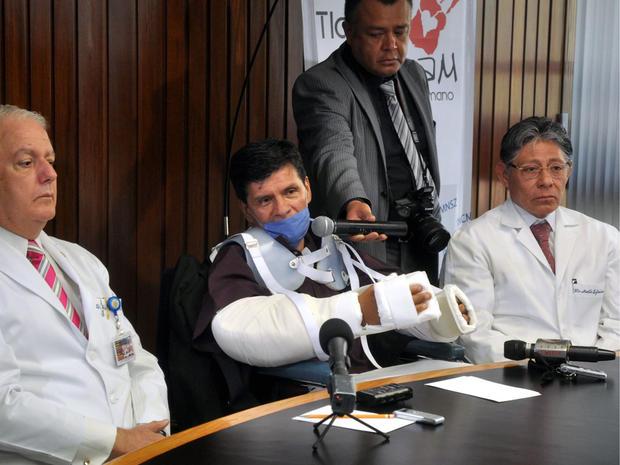 double arm transplant, mexico