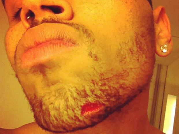Drake-Chris Brown: Inside the brawl