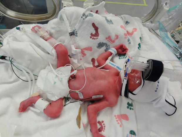 Texas family welcomes quintuplets
