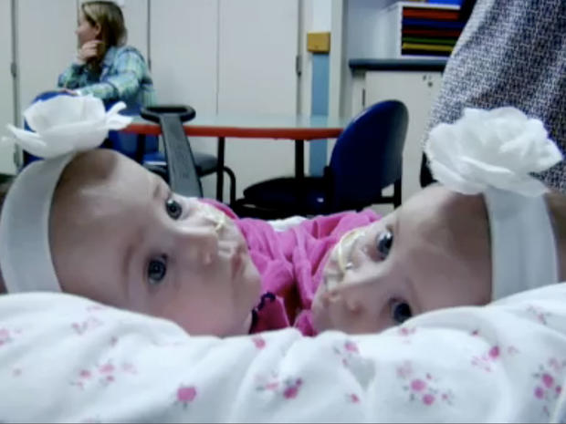 Conjoined twins: Allison and Amelia