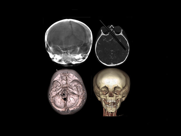 Shocking medical scans