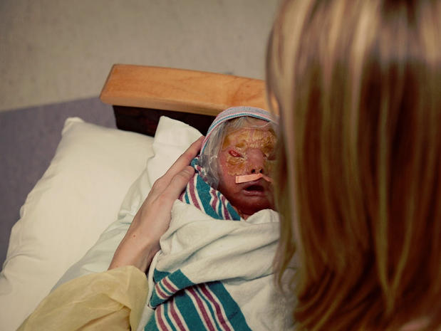 Meet Brenna, a baby with Harlequin Ichthyosis