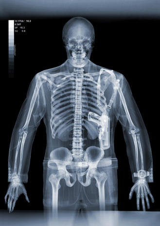 Incredible x-ray  art