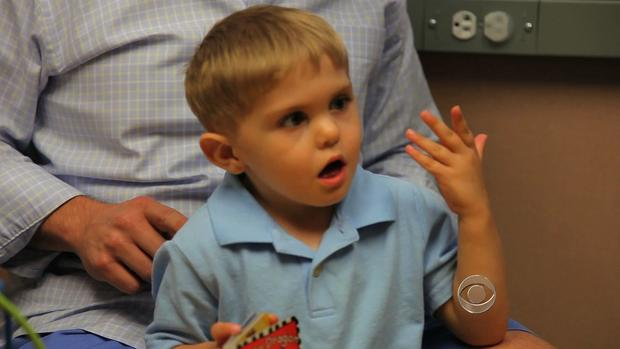 Grayson Clamp hears for the first time following surgery.