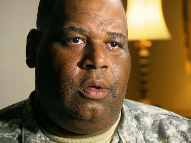 2009年胡德堡枪击事件离开了工作人员中士。 Alonzo Lunsford一只眼睛瞎了眼,并且在PTSD上挣扎。