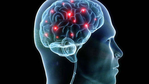 E4 Gene May Impact Brain Even in Childhood