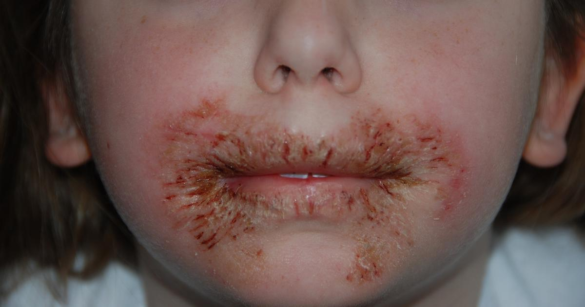 how to get rid of face rash from allergic reaction