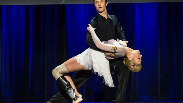 Dancer Adrianne Haslet-Davis, front, performs on stage with dancer Christian Lightner at the 2014 TED Conference March 19, 2014, in Vancouver, British Columbia, in this picture provided by TED 2014 Conference.