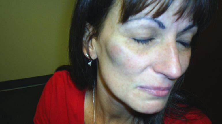 michele-williams-bruise.jpg